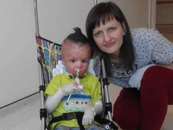 «Він відрізняється від інших, але він живий, бачить, чує та ходить»,– мама трирічного Владика